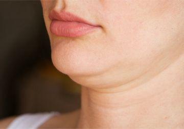 肌のたるみが原因の二重あご