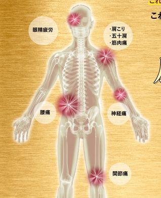 関節痛や神経痛、腰痛などの各所の痛みの説明図
