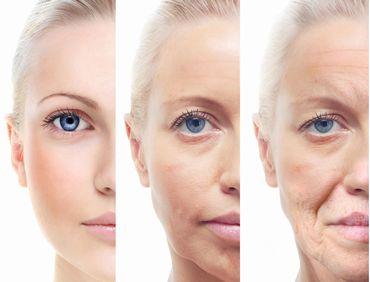 肌老化の様子