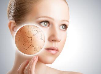 肌が乾燥する女性