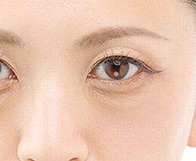 眼窩脂肪のある目元