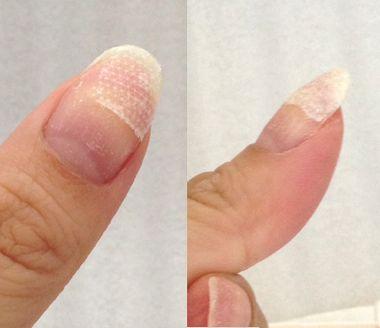 絆創膏で割れた爪を補修する様子