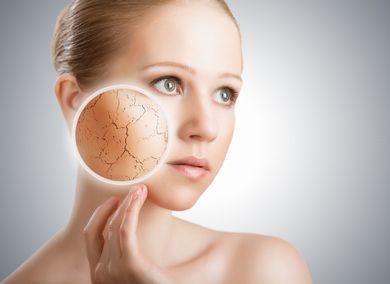 インナードライ肌(乾燥性脂性肌)の女性