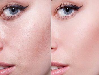 ニキビ跡や凹凸が改善された肌