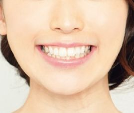 「い」の口の形をつくる女性